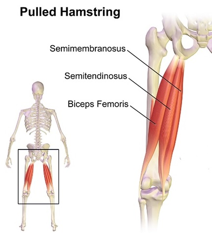 pulled hamstring