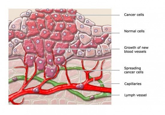 Invasive cancer cells